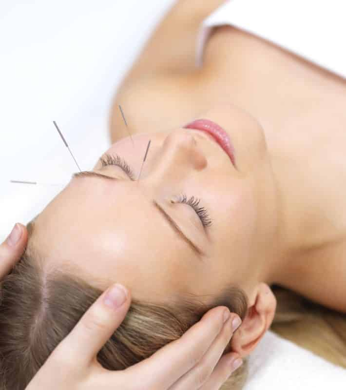 Dry Needling or Acupuncture